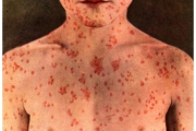 Additional cases of measles in the Vancouver region has prompted a statement from Public Health Agency of Canada.